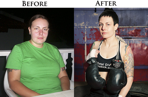 RUTH MCCORMACK before and after pictures